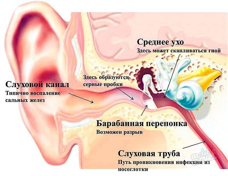Болит ухо у ребенка левое, правое, стреляет, заложило внутри, сильная боль при глотании, простуде. причины, чем лечить — medists.ru