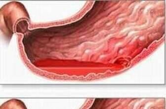 Кишечное кровотечение симптомы первая помощь
