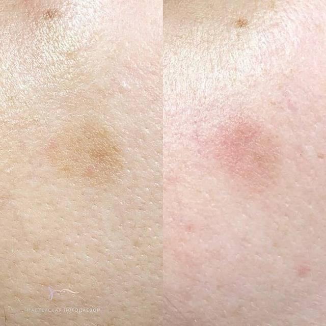 Пятна на коже - диагностика по цвету, локализации, сухости и зуду