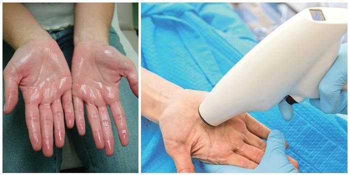 Гипергидроз подмышек - причины, симптомы, диагностика и лечение