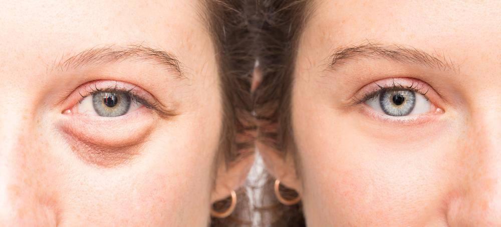 Что делать, если отекают веки глаз по утрам? важно выбрать эффективный подход к лечению