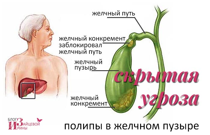Загиб желчного пузыря у детей лечение народные средства