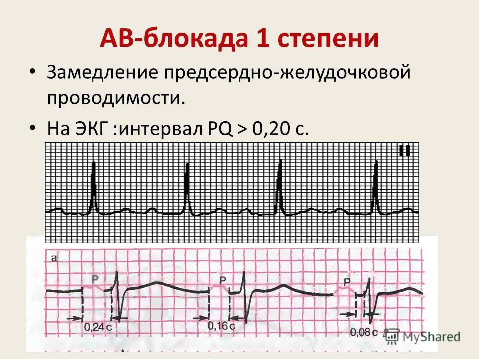Что такое замедление внутрижелудочковой проводимости? - семейная клиника опора г. екатеринбург