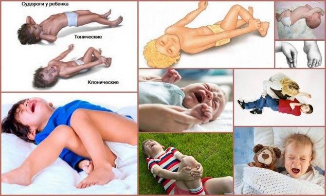 Эпилепсия у детей до года: причины, симптомы, лечение и прогноз