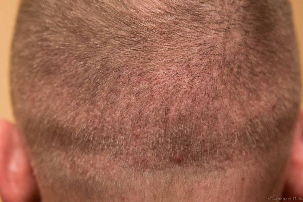 Прыщи на голове и выпадение волос