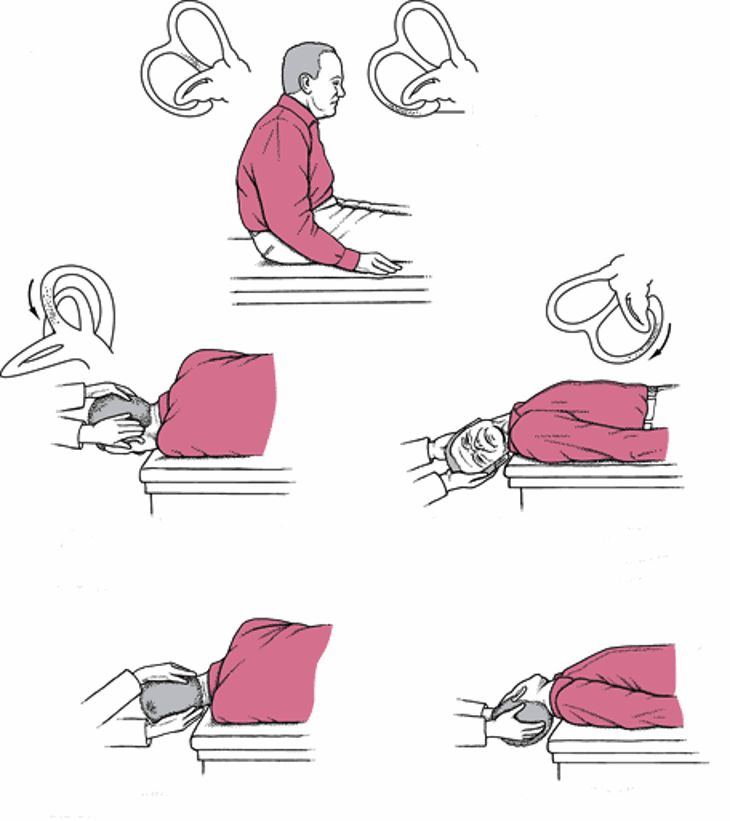 Позиционное головокружение упражнения видео - борьба с головокружениями