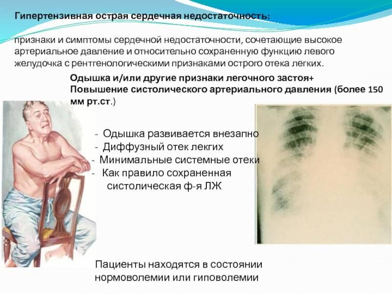 Как избавиться от одышки: лечение лекарствами, народные средства