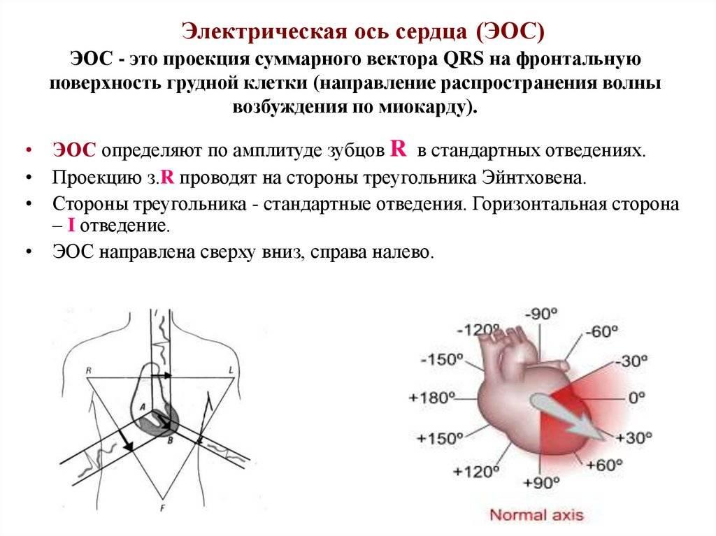 Электрическая ось сердца (эос) и причины её патологического смещения