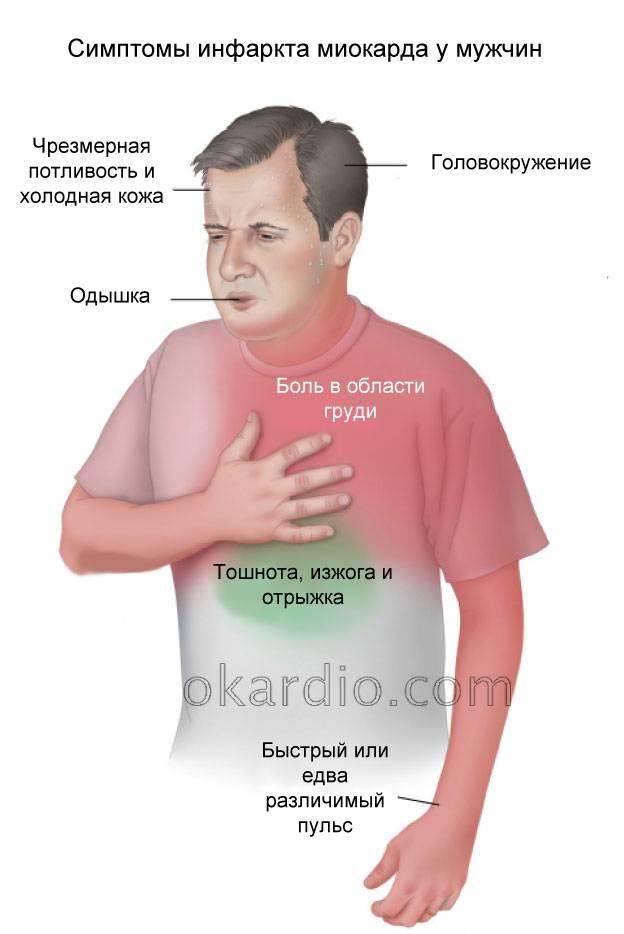 Первые признаки предынфарктного инфаркта у мужчин пожилого возраста: состояние, симптомы - подробная информация