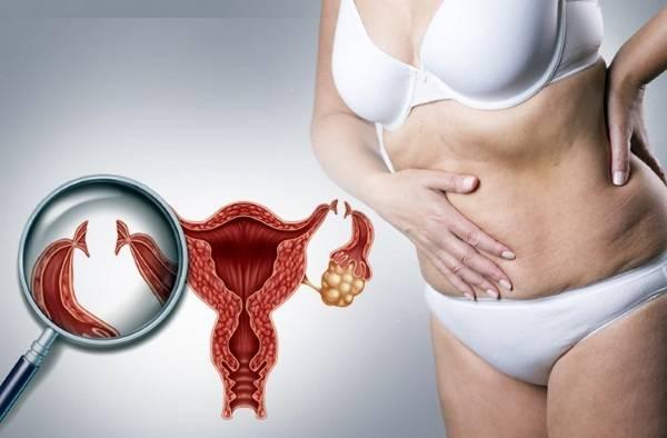 Серозометра матки в менопаузе: лечение скопления жидкости в полости матки, причины патологии у женщин, прогнозы врачей