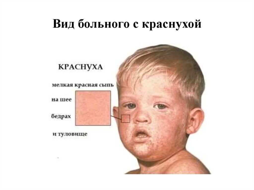 Розеола у детей - симптомы и лечение, профилактика болезни