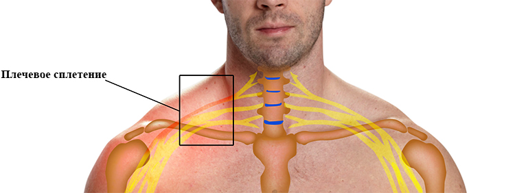 Невралгия плечевого нерва (сплетения, сустава) руки: симптомы и лечение