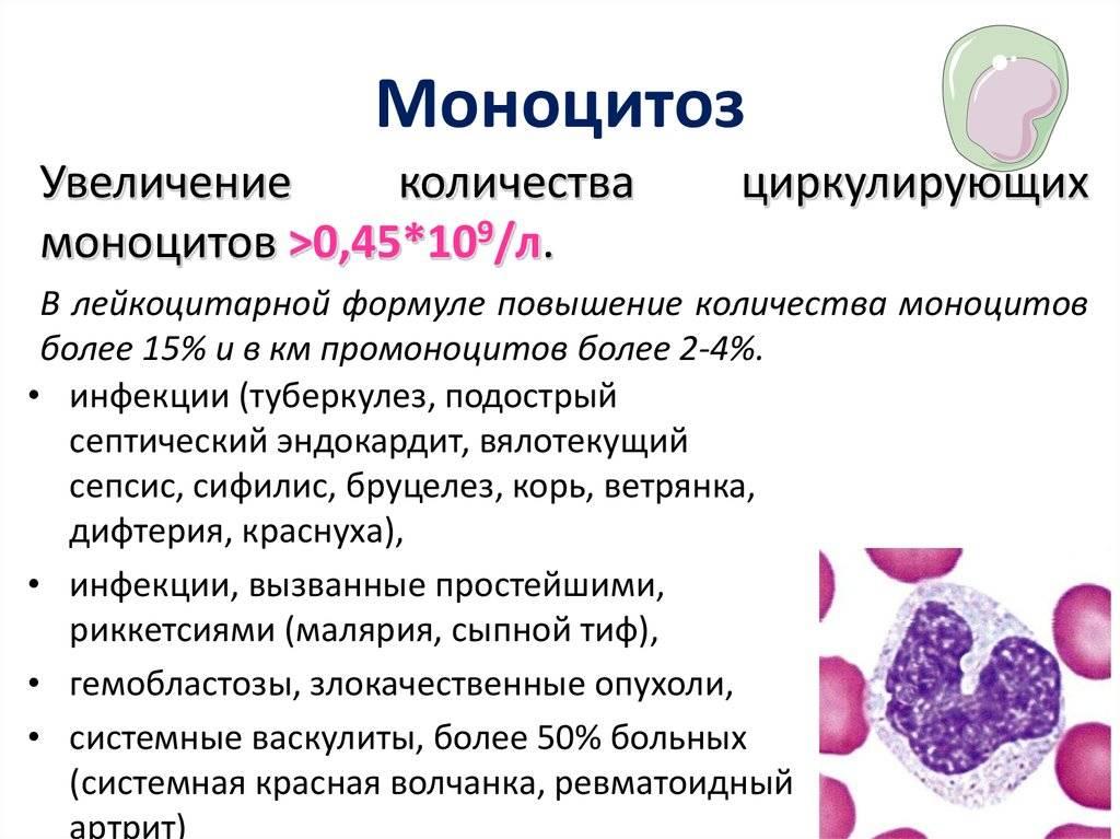 Лимфоцитоз у детей: сопутствующие симптомы, причины, диагностика