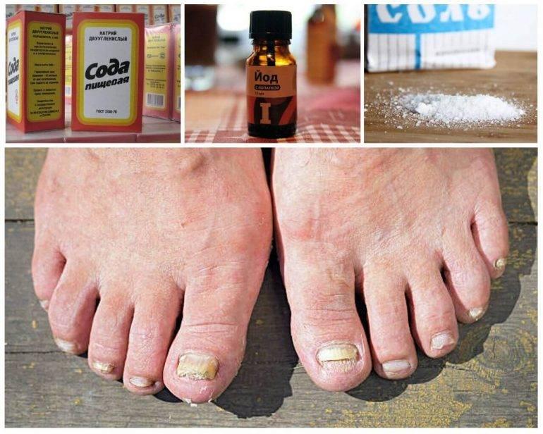 Как начинается грибок ногтей (фото): непропустите инфекцию!