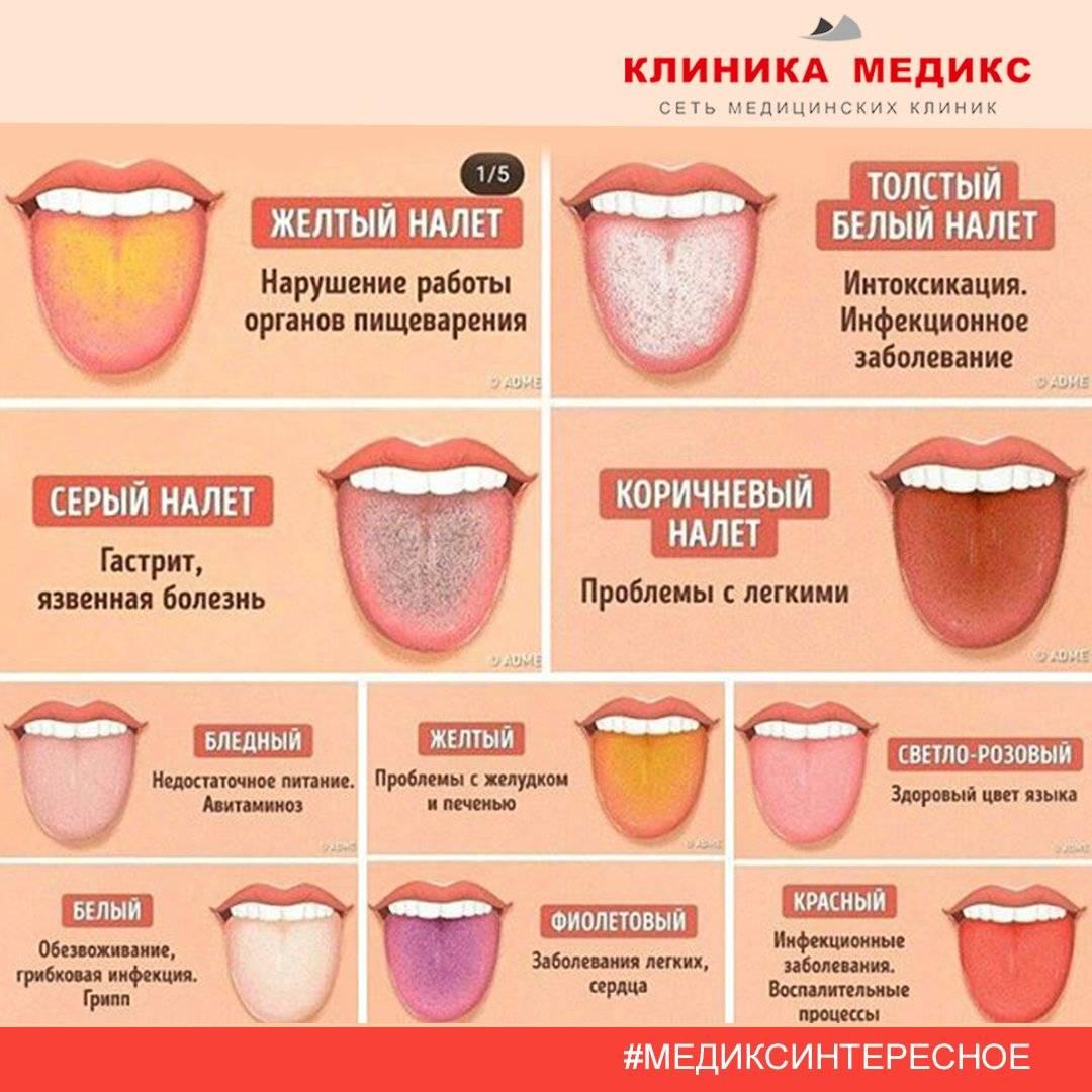 Привкус железа во рту: 7 причин, проявления 11 заболеваний, побочное действие препаратов