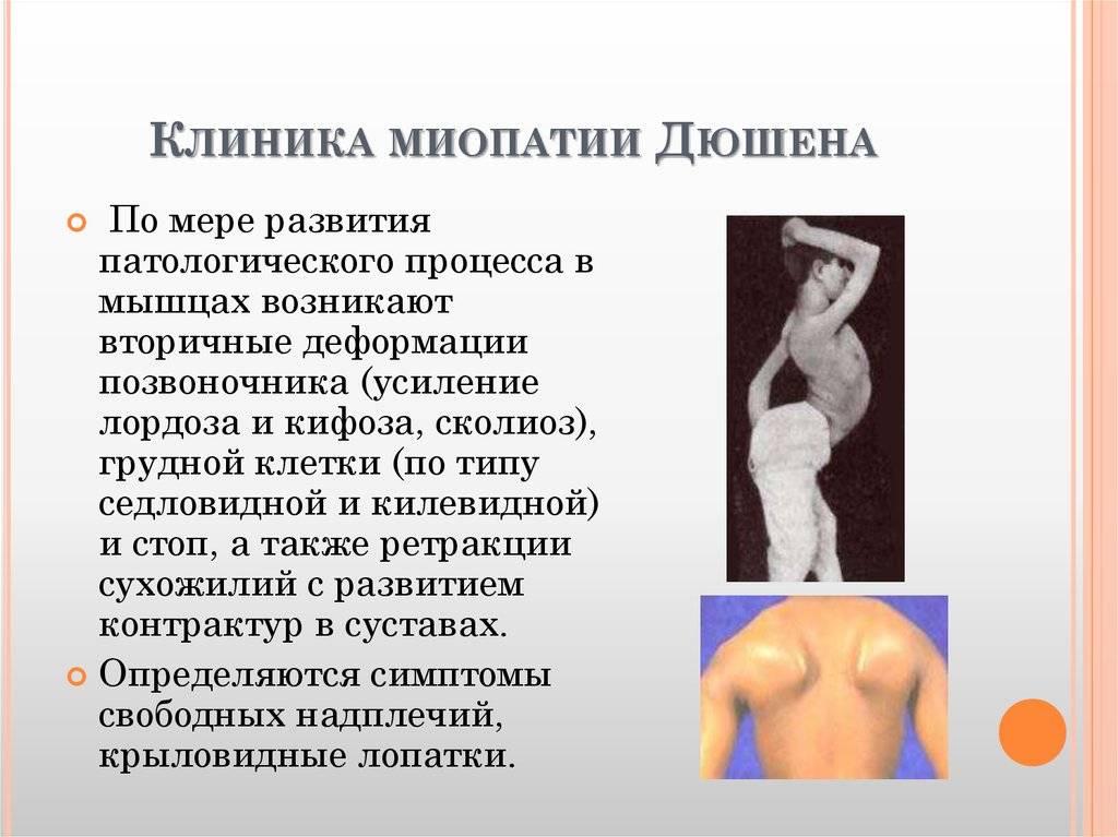 Миопатия дюшена: диагноз. лечение. осложнения. | миопатия.by