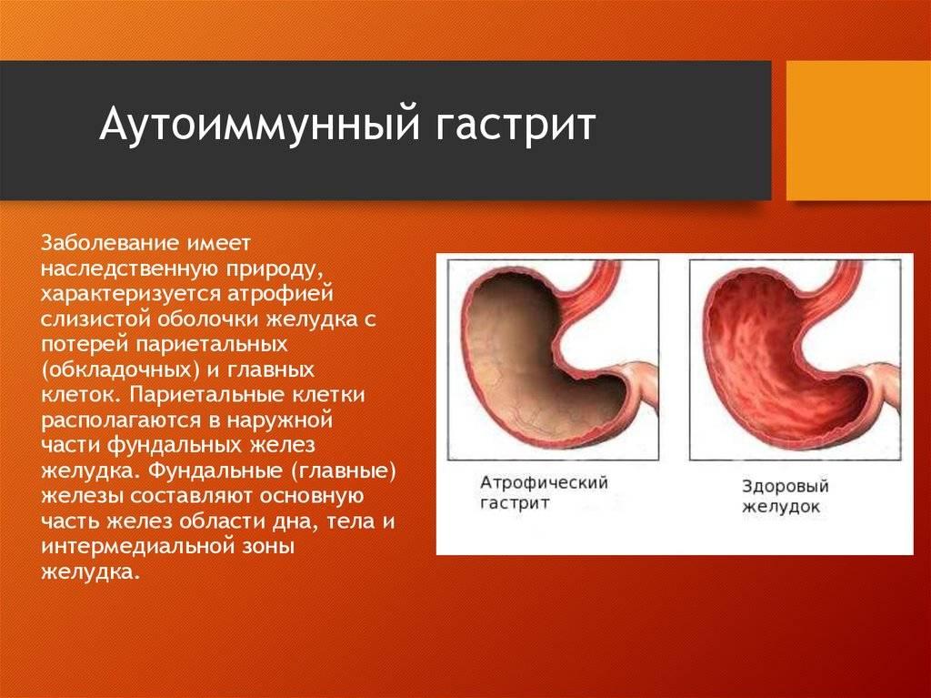 Аутоиммунный гастрит: этиология, симптомы, лечение | vrednuga.ru