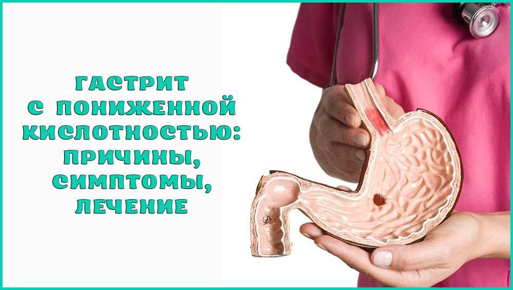 Гиперацидный гастрит: симптомы, лечение, диагностика, диета