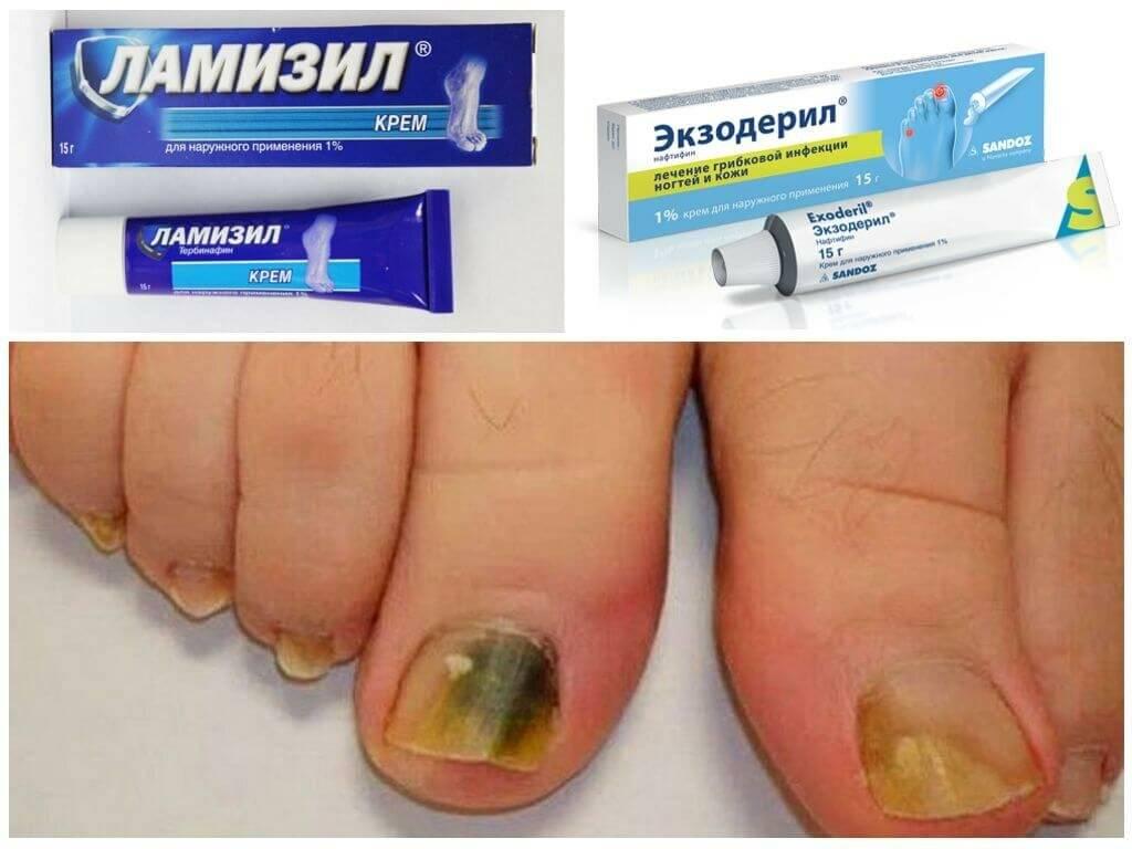 Грибок ногтей: фото, лечение, препараты, народные средства