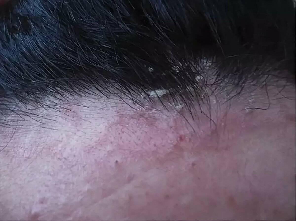 Причины появления сыпи и зуда на голове у взрослого и решение проблемы