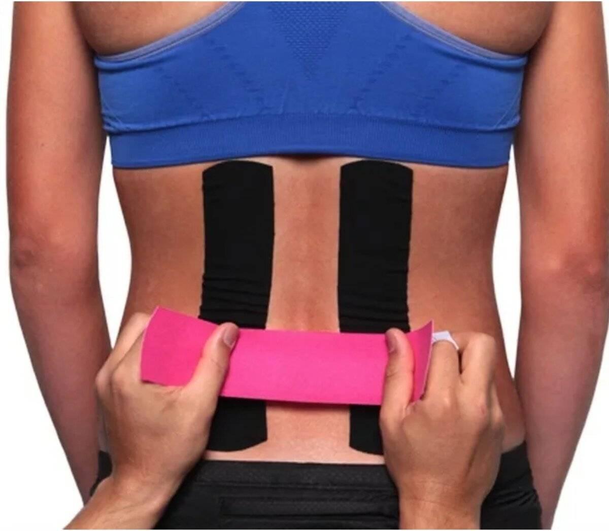 Тейпирование спины — показания, применение и отзывы