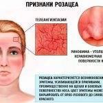 Купероз на лице: лечение, 12 препаратов, эффективные аптечные средства, рейтинг лучших мазей от купероза, отзывы о кремах и косметики
