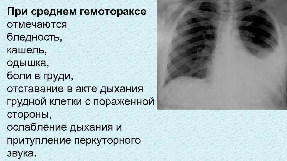 Боль в грудине справа: причины, почему болевые ощущения спереди отдают в лопатку