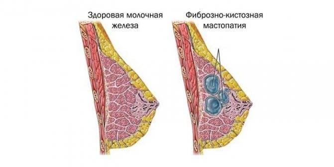 Как навсегда вылечить мастопатию?