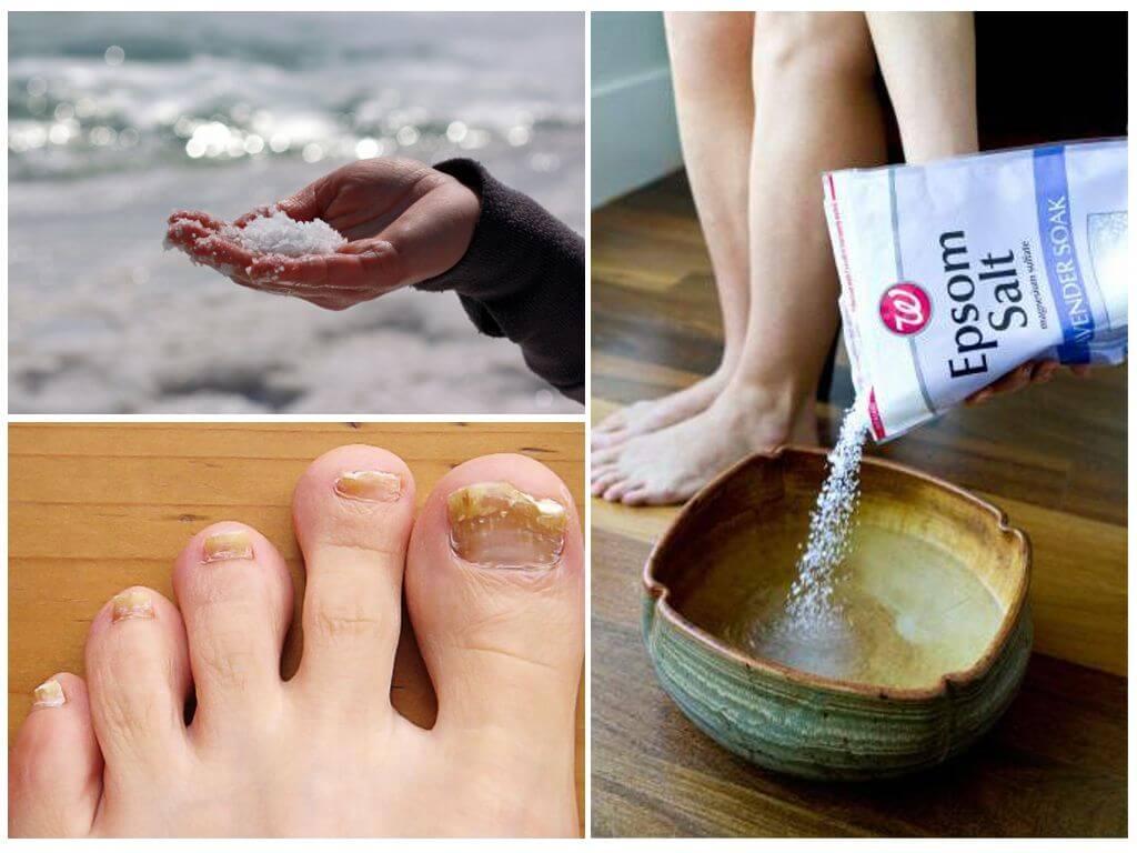Как выглядит грибок на ногтях ног: подробные фото, эффективные средства лечения