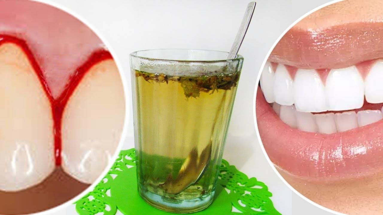 Чем лечить пародонтоз в домашних условиях: зубы шатаются и выпадают – что делать