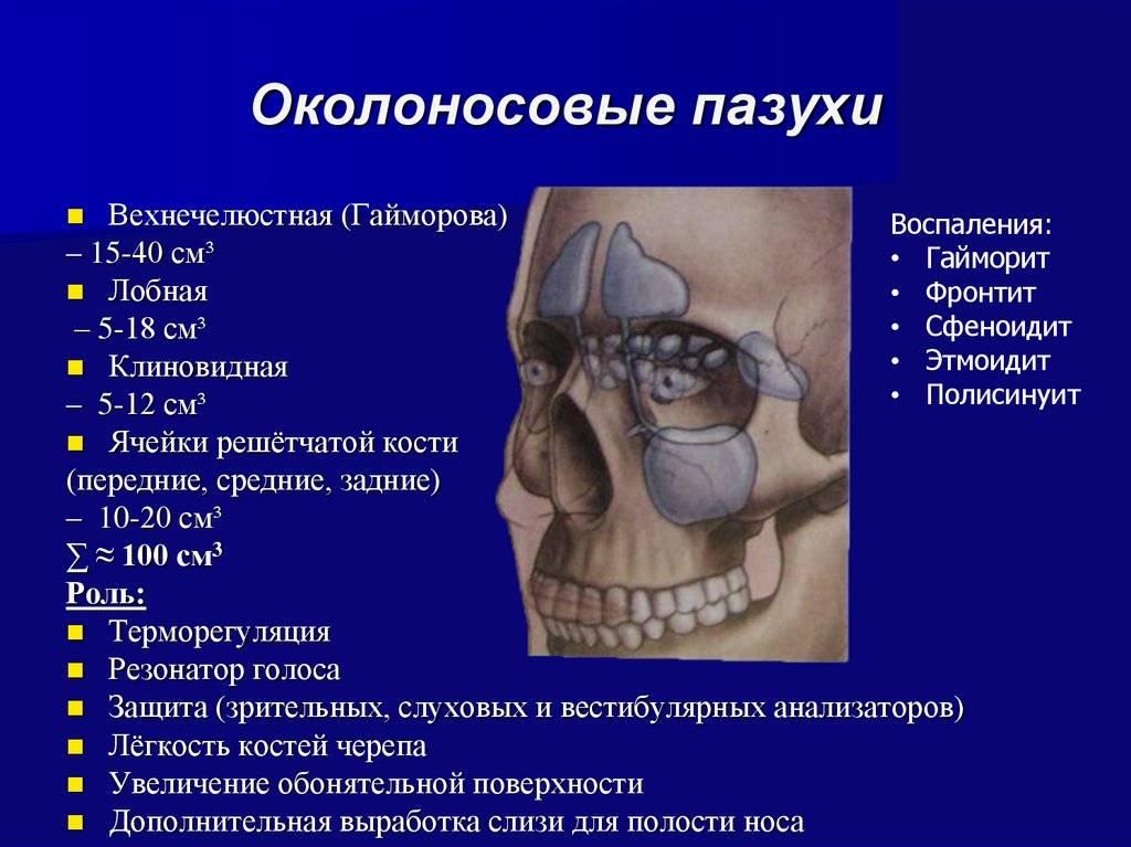 Пристеночный гайморит: что такое, симптомы, лечение