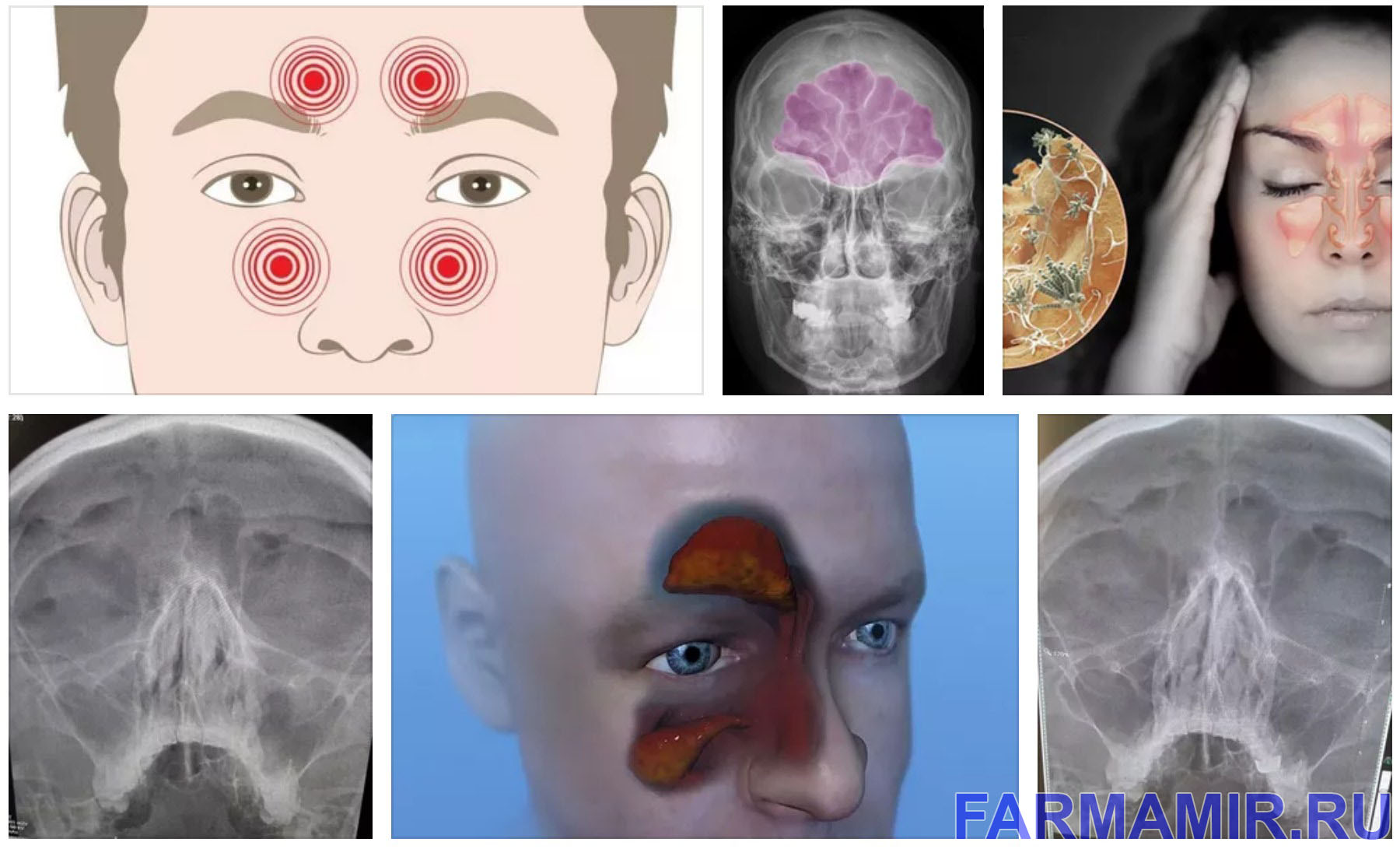 Простатит и гайморит связь фиброз после простатита