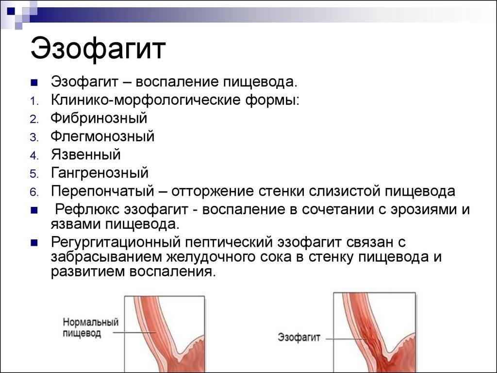 Гэрб с эзофагитом: симптомы и лечение - гэрб с эрозивным эзофагитом