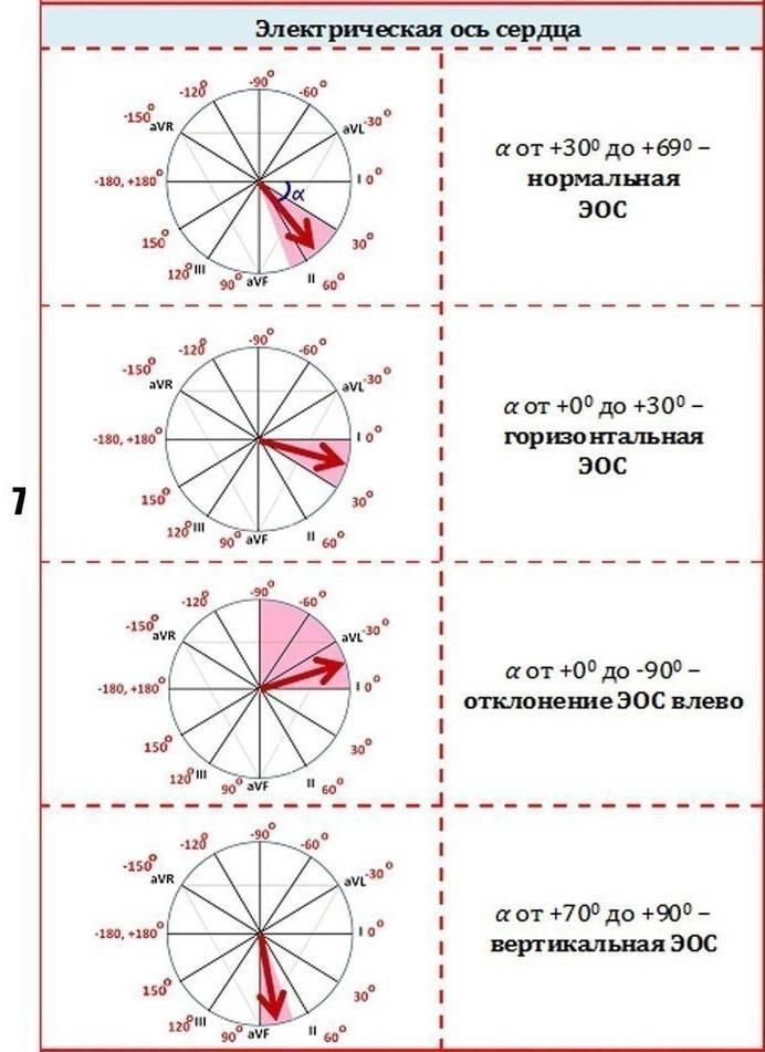 Как определить электрическую ось сердца по экг