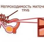 Признаки воспаления маточных труб: как выявить и устранить патологию