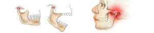 Сводит челюсть: причины, диагностика и лечение