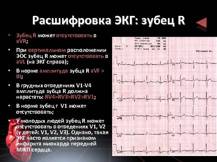 Экг: норма, расшифровка показателей и результатов исследования | азбука здоровья