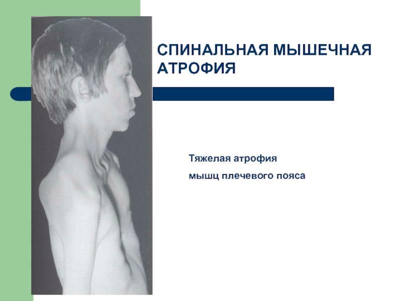 Как лечат спинальную мышечную атрофию