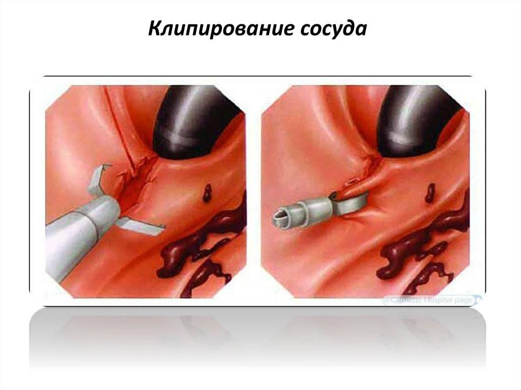 Кишечное кровотечение, признаки и определение, первая помощь