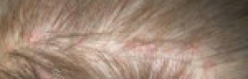 Прыщи на голове в волосах у мужчин и женщин: причины и лечение