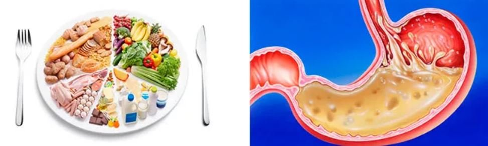 Приступ гастрита: симптомы, чем снять боль? обезболивающие средства