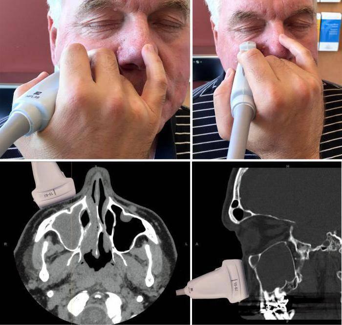 Компьютерная томография пазух носа: процедура и возможные результаты - лортут
