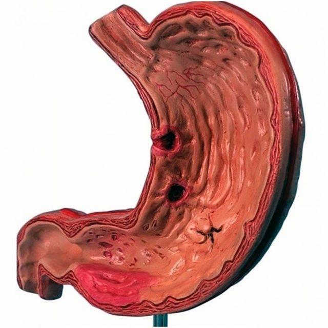 Гастрит – симптомы, лечение, диета