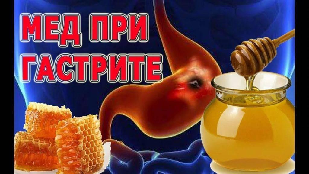 Мед при гастрите с повышенной кислотностью и пониженной: когда можно, в чем польза
