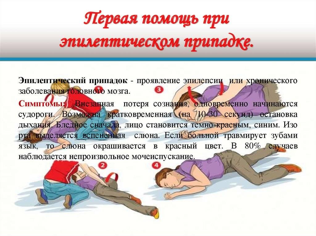 Эпилепсия у детей: причины, клинические проявления, лечение