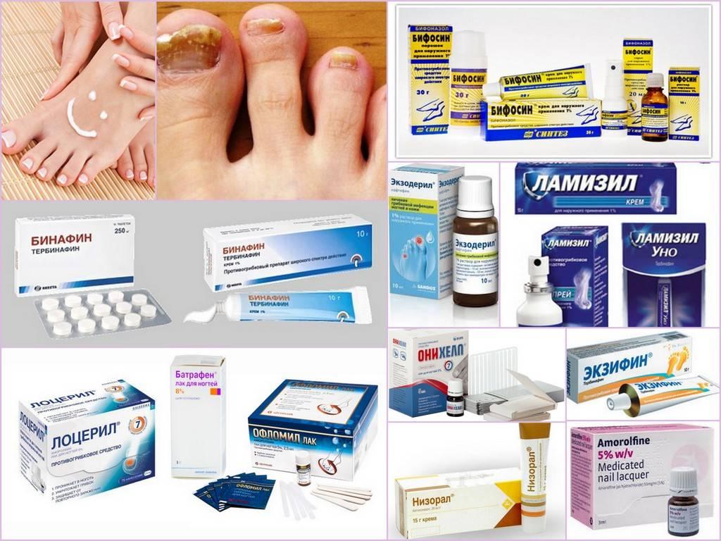 Как выглядит грибок ногтей на ногах. чем лечить