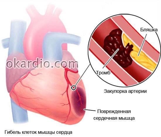Что такое предынфарктное состояние и как распознать его?