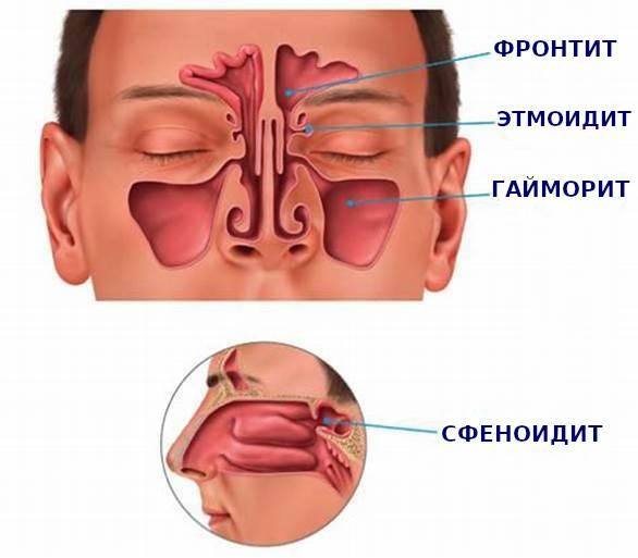Синусит катаральной формы: то, что нужно знать о болезни