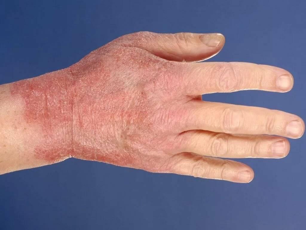 Народные средства от экземы на ногах: лечение в домашних условиях сухой и мокрой патологии