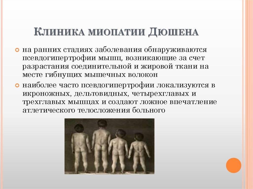 Миопатия дюшена (дюшенна) - что это за болезнь?